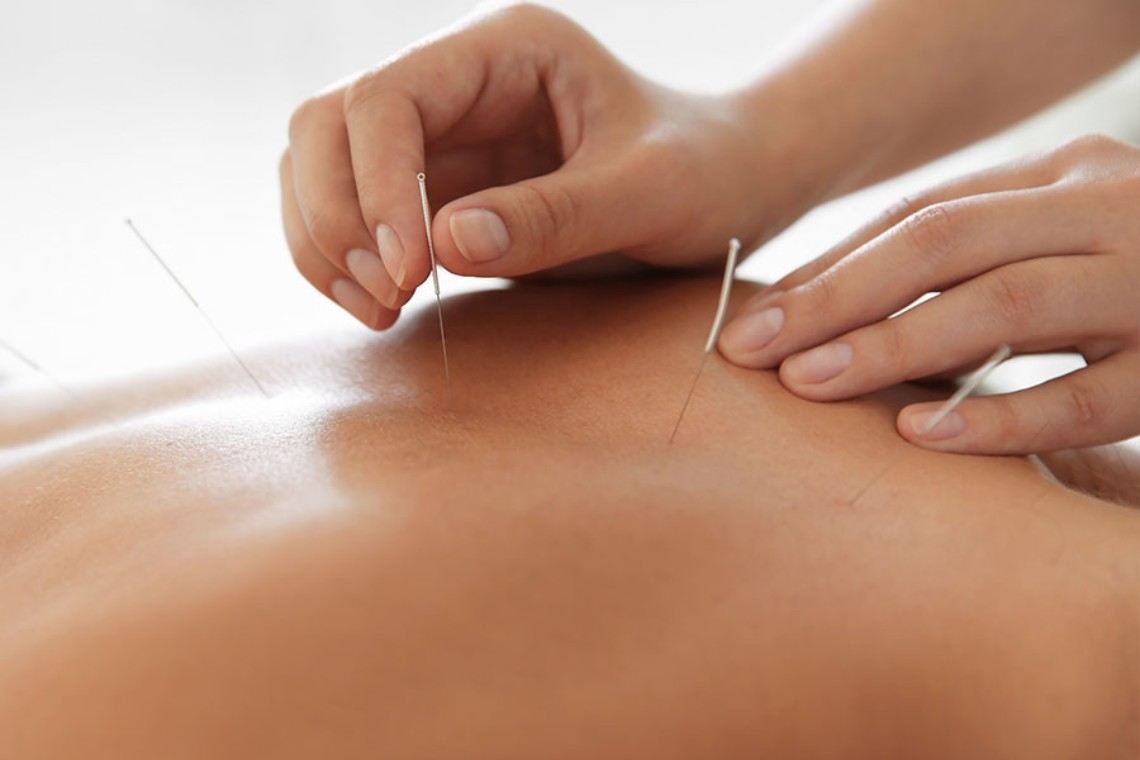 Dry Needling Macleod
